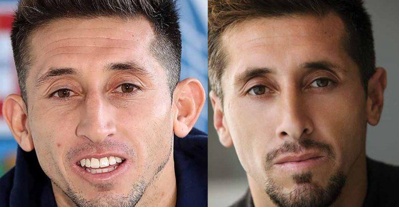 En boca de todos: El antes y después de Héctor Herrera