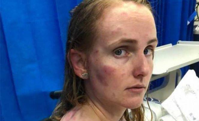 Mujer sufre graves lesiones por proteger a su bebé de granizo
