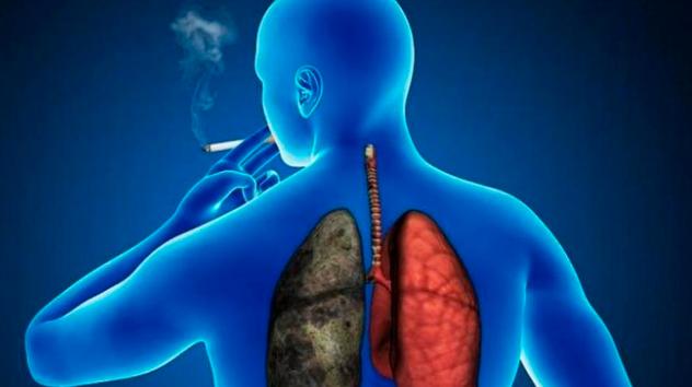Le trasplantan pulmón de una persona fumadora y muere