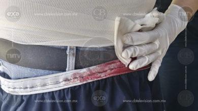 Herido de bala es auxiliado por paramédicos en colonia de Morelia
