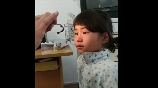 Extraen sanguijuela viva de la nariz de una niña
