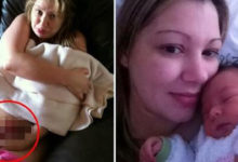 Mujer da a luz y se le salen los intestinos cinco días después