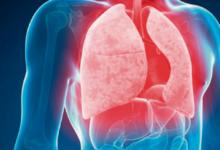 Necesario activar primer nivel de atención para eliminar tuberculosis en 2035