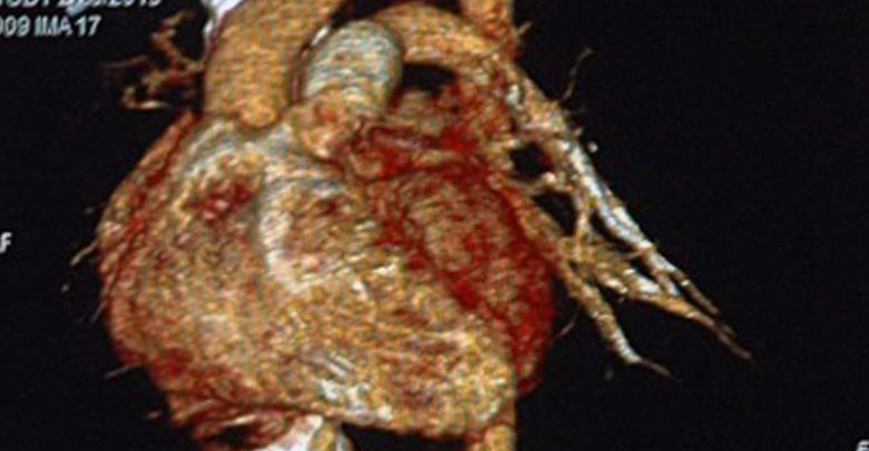 El 90 % de los casos del síndrome de corazón roto se presenta en mujeres