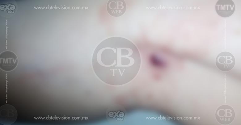 Morelia: Hieren a mujer de un balazo en la pierna
