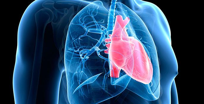 Necesario fortalecer acceso a tratamientos para hipertensión pulmonar