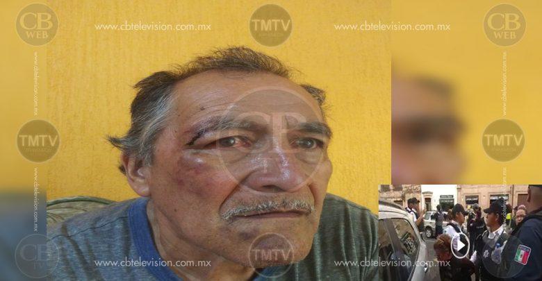 Tras ser detenido y golpeado por Policías de Morelia, Antonio pide justicia