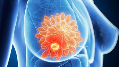 Photo of Indoloro y rápido, así es el nuevo método para diagnosticar el cáncer de mama