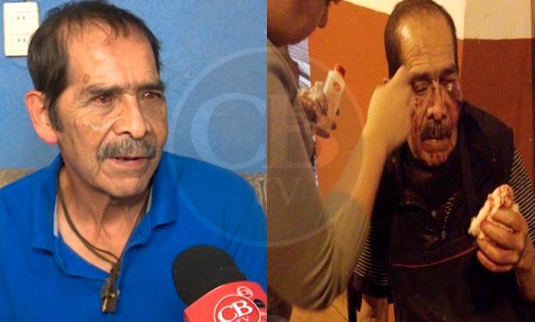 Un mes en cama por operación a José Manuel, vendedor agredido por estudiante