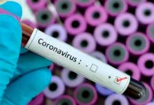 Photo of ¡Alerta! Bajo observación un probable caso de coronavirus en México