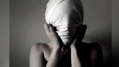 """Photo of Tóxicos nivel: Joven quema su rostro para """"acabar con su belleza"""" y no darle celos a su novio"""