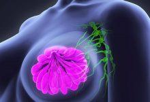 Photo of ¿Te preocupa el cáncer? 4 de cada diez personas con cáncer pudieron evitarlo siguiendo estos consejos